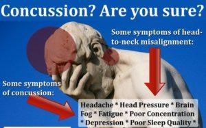 concussion neck misalignment e1537120186956